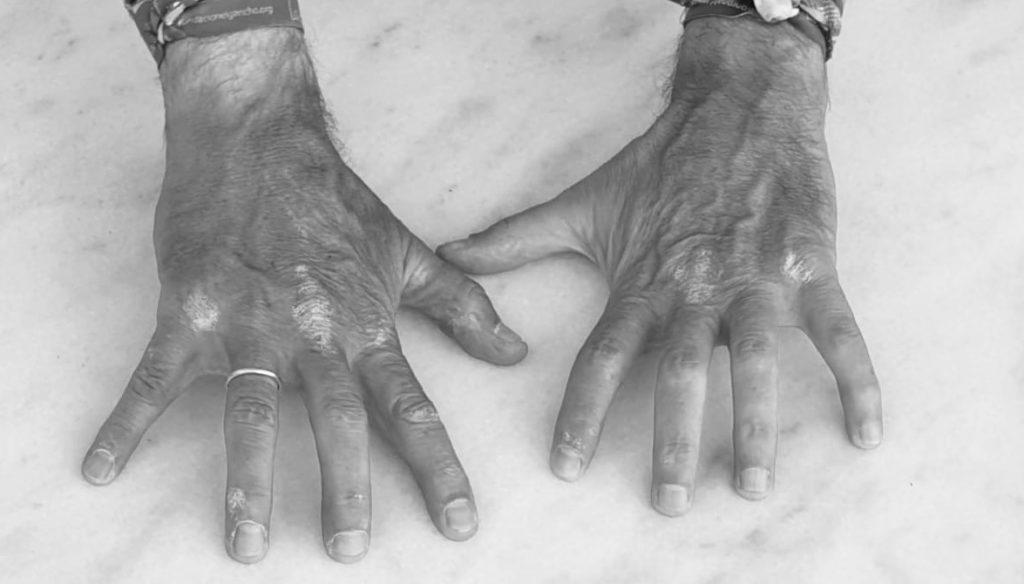 Manos lesiones reumatologia diagnóstico tratamiento